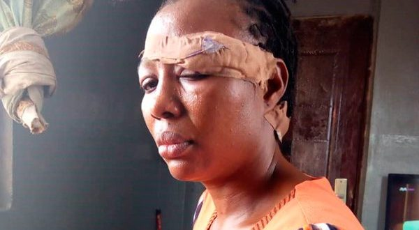 LAGOS: POLICE COUPLE STAB EACH OTHER OVER MISUNDERSTANDING