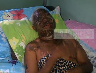 ANAMBRA:  MAN BATHES WIFE WITH ACID OVER PLAN TO DIVORCE HIM